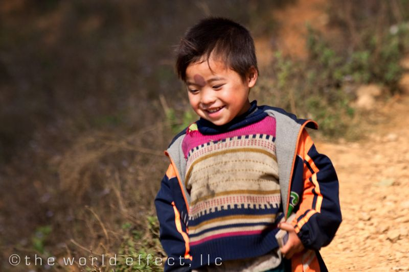 Sapa Vietnam - Village boy with scare on his forhead from local medicine